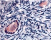 Immunohistochemistry staining of TMEM5 in ovary, oocytes tissue using TMEM5 Antibody.
