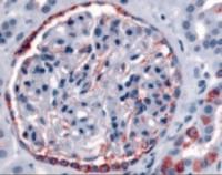 Immunohistochemistry staining of PIB5PA in glomerulus and renal tubular epithelium in cortex tissue using PIB5PA Antibody.