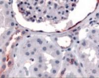 Immunohistochemistry staining of ERBB4 in glomerulus and renal tubular epithelium in cortex tissue using ERBB4 Antibody.