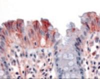 Immunohistochemistry staining of MST1R in colon, surface epithelium tissue using MST1R Antibody.