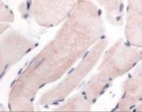 Immunohistochemistry staining of WNK1 in skeletal muscle tissue using WNK1 Antibody.