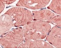 Immunohistochemistry staining of USP2 in skeletal muscle tissue using USP2 Antibody.