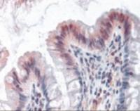Anti-OAS1 Rabbit Polyclonal Antibody