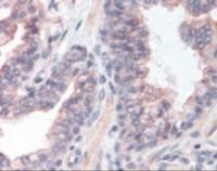 Immunohistochemistry staining of EXOC2 in prostate tissue using EXOC2 Antibody.