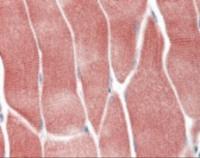 Immunohistochemistry staining of AKT1 in skeletal muscle tissue using AKT1 Antibody.