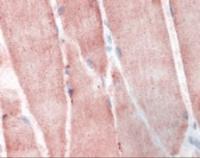 Immunohistochemistry staining of Ribosomal Protein S6 Kinase in skeletal muscle tissue using Ribosomal Protein S6 Kinase Antibody.