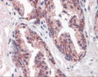 Immunohistochemistry staining of MMP23B in prostate tissue using MMP23B Antibody.