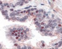 Immunohistochemistry staining of NEK2 in prostate tissue using NEK2 Antibody.
