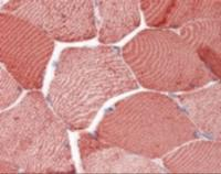 Immunohistochemistry staining of CYCS in skeletal muscle tissue using CYCS monoclonal Antibody.