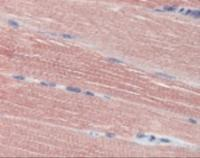 Immunohistochemistry staining of ACHE in skeletal muscle (formalin-fixed paraffin embedded) tissue using ACHE Antibody.
