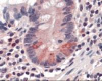 Anti-SLC15A1 Rabbit Polyclonal Antibody