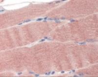 Immunohistochemistry staining of SLC40A1 in skeletal muscle (formalin-fixed paraffin embedded) tissue using SLC40A1 Antibody.