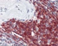 Immunohistochemistry staining of CD5 in spleen tissue using CD5 monoclonal Antibody.