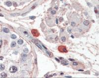 Human Mast cells stained with Fc Epsilon Receptor 1 (FceR1) Antibody at 10 ug/mL followed by biotinylated anti-mouse IgG secondary antibody, alkaline phosphatase-streptavidin and chromogen.