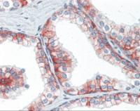 Human prostate tissue stained with BSG Antibody at 10 ug/mL followed by biotinylated anti-mouse IgG secondary antibody, alkaline phosphatase-streptavidin and chromogen.