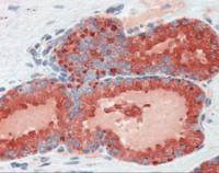 Human prostate tissue stained with KLK3 Antibody, alkaline phosphatase-streptavidin and chromogen.