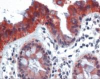 Human colon tissue stained with KRT18 Antibody, alkaline phosphatase-streptavidin and chromogen.