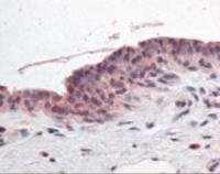 Immunohistochemistry staining of Retinoic Acid receptor alpha in breast tissue using Retinoic Acid receptor alpha Antibody.
