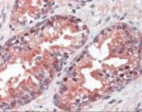 Immunohistochemistry staining of VCP in prostate tissue using VCP monoclonal Antibody.