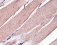 Immunohistochemistry staining of Myogenin in skeletal muscle tissue using Myogenin monoclonal Antibody.