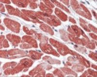 Immunohistochemistry staining of AOF2 in heart tissue using AOF2 Antibody.