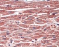 Immunohistochemistry staining of DUSP8 in heart tissue using DUSP8 Antibody.
