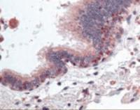 Anti-HDAC4 Rabbit Polyclonal Antibody