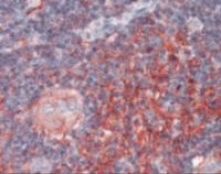 Immunohistochemistry staining of B2M in thymus tissue using B2M Antibody.