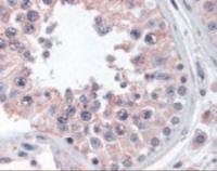 Immunohistochemistry staining of ANKRD32 in testis tissue using ANKRD32 Antibody.