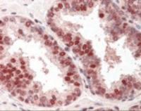 Immunohistochemistry staining of RAD52 in prostate tissue using RAD52 Antibody.