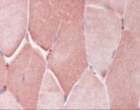 Immunohistochemistry staining of CRY2 in skeletal muscle tissue using CRY2 Antibody.