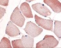 Immunohistochemistry staining of Cyclin L1 in skeletal muscle tissue using Cyclin L1 Antibody.