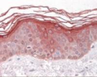Immunohistochemistry staining of GDF5 in skin tissue using GDF5 Antibody.