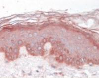 Immunohistochemistry staining of T-box 15 in skin (formalin-fixed paraffin embedded) tissue using T-box 15 Antibody.