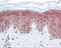Immunohistochemistry staining of DNMT1 in skin tissue using DNMT1 Monoclonal Antibody.