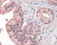 Immunohistochemistry staining of P97 in prostate tissue using P97 Antibody.