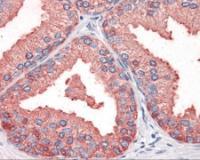 Immunohistochemistry staining of OSTC in prostate tissue using OSTC Antibody.