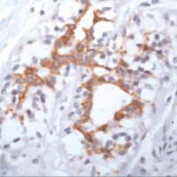 Immunohistochemistry staining of FGF Receptor 3 in breast carcinoma tissue using FGF Receptor 3 Antibody.