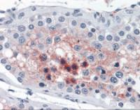 Immunohistochemistry staining of Cathepsin L2 in testis tissue using Cathepsin L2 monoclonal Antibody.
