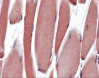 Immunohistochemistry of human skeletal muscle tissue stained using PAX3 Monoclonal Antibody.
