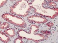 Immunohistochemistry of human prostate tissue stained using CD38 Monoclonal Antibody.