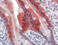 Immunohistochemistry of human small intestine tissue stained using AKR1B10 Monoclonal Antibody.