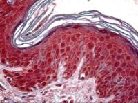 Anti-TSG101 Mouse Monoclonal Antibody