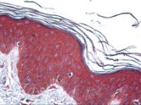 Anti-UBE2D2 Mouse Monoclonal Antibody