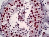 Immunohistochemistry of human testis tissue stained using YY1 Monoclonal Antibody.