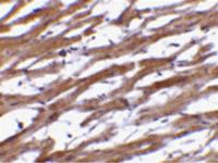 Immunohistochemistry of BAP29 in human heart tissue with BAP29 antibody at 10 ug/mL.