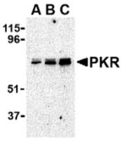 Western blot analysis of PKR in A431 whole cell lysate with PKR antibody at (A) 0.5, (B) 1 and (C) 2 ug/mL.