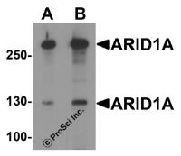 Western blot analysis of ARID1A in SK-N-SH cell lysate with ARID1A antibody at (A) 1 and (B) 2 ug/ml.