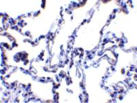 Immunohistochemistry of p53R2 in human lung tissue with p53R2 antibody at 1 ug/mL.