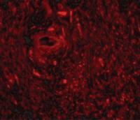 Immunofluorescence of TRIM5 gamma in human bladder tissue with TRIM5 gamma antibody at 20 ug/mL.